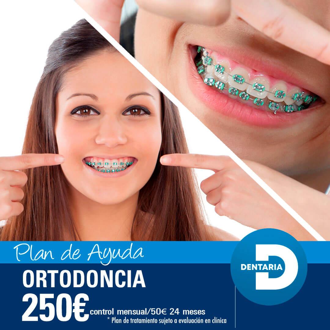 ortodoncia por 250